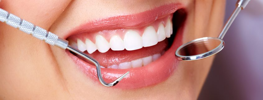 De mondhygiënst voorkomt gaatjes en tandvleesaandoeningen door tandplak te verwijderen.